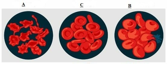 C:wampwwwafricaimagesOsmotic-pressure-on-blood-cells-diagram.jpg